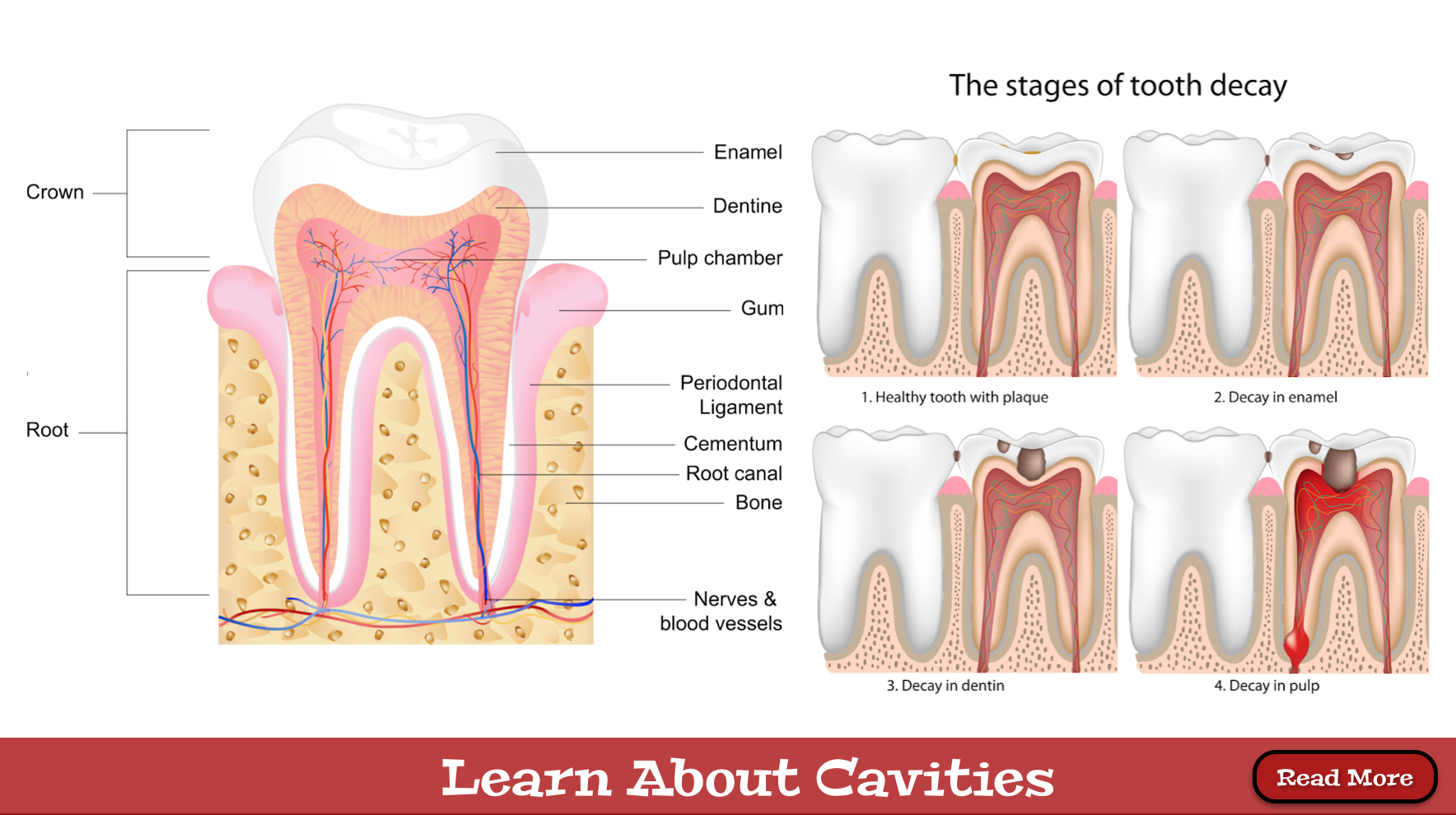 Dental-Cavities