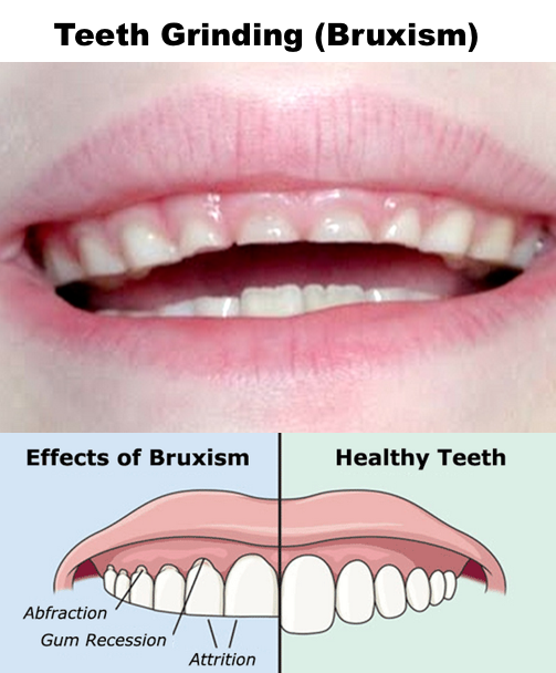 Nighttime Teeth-Grinding in Children (Bruxism)