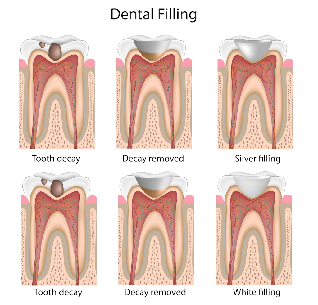 dental filling Lonestar