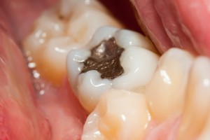 "are tooth amalgam (""fillings"") safe?"